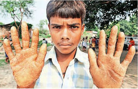 A boy in Ballia, shows skin lesions caused by arsenic poisoning Source:National Level Monitor Report